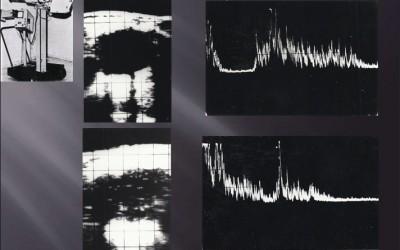 Quiste (fotos superiores) y tumor renal (fotos inferiores) en modos B y A