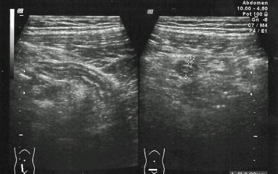 apendice normal