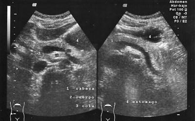 pancreas normal